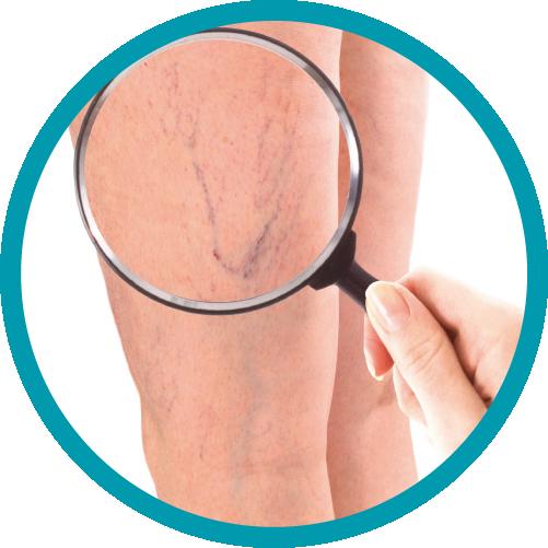 Somos especialistas en tratamiento médico quirúrgico de todas las enfermedades de los pies (prevención y salvamento de pie diabético grave). Y expertos en estudiar las enfermedades de várices, mala circulación en piernas y úlceras.