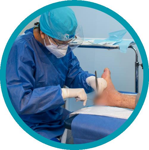 Brindamos atención especializada a personas que sufren de pie diabético, promoviendo así tratamientos que prevengan situaciones de salud extremas.